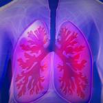Zalecenia dietetyczne<br> w leczeniu astmy<br> i POChP